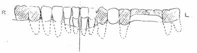 dibujo frontal