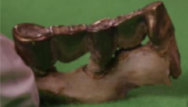 foto de cinco dientes