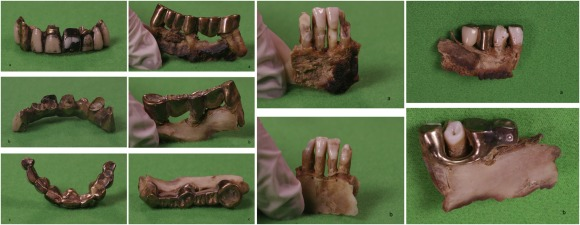 fotos del articulo de Internal Medicine Journal